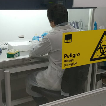 Aumento de casos por Covid-19 en el Biobío: Laboratorio UCSC apoya escenario local